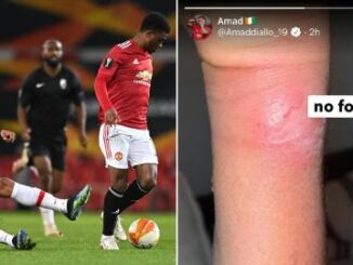 Manchester United youngster Amad Diallo shows off battle Scares and fumes over foul against Granada 4 Sportelo