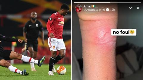 Manchester United youngster Amad Diallo shows off battle Scares and fumes over foul against Granada 3 Sportelo